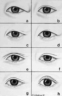 Asian Blepharoplasty - Diseases  Conditions - Medscape Reference