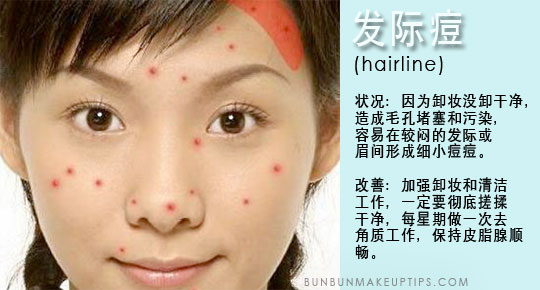 Acne Health Your Body Trying Tell