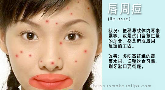 pimples around lips caused by weak digestive system, constipation, indigestion