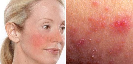 Sensitive-skin-irritation-rashes-2
