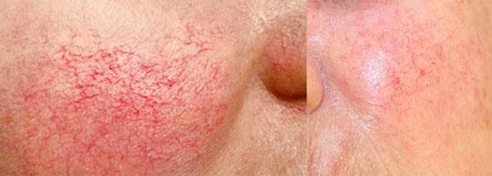 Sensitive-skin-irritation-rashes