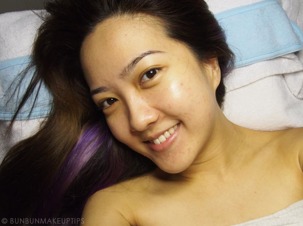 My-Skin-Ravaged-Allergic-Reaction-After-Facial-Experience_day-1-after-facial_1
