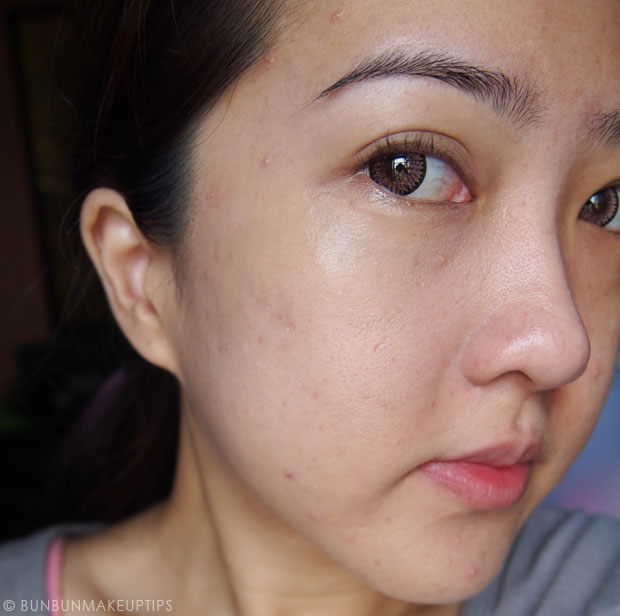 My-Skin-Ravaged-Allergic-Reaction-After-Facial-Experience_day-2-morning