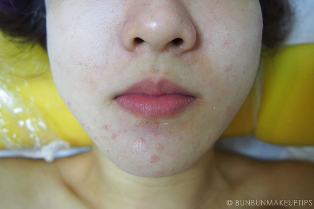 My-Skin-Ravaged-Allergic-Reaction-After-Facial-Experience_day-3-after-extraction-3
