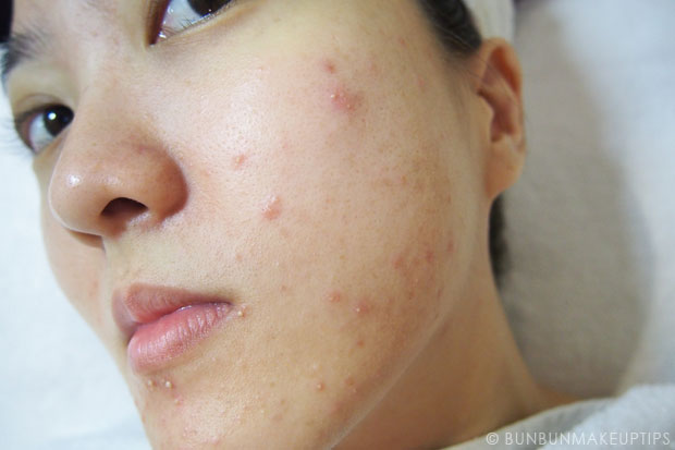 My-Skin-Ravaged-Allergic-Reaction-After-Facial-Experience_day-3-after-extraction_2