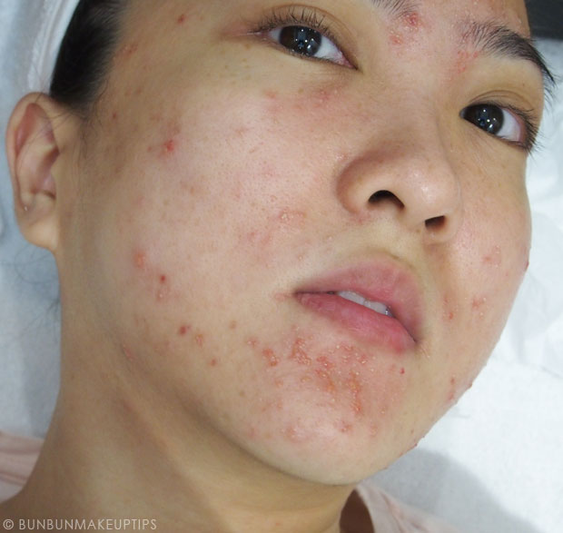 My-Skin-Ravaged-Allergic-Reaction-After-Facial-Experience_day-4-after-extraction-1.1