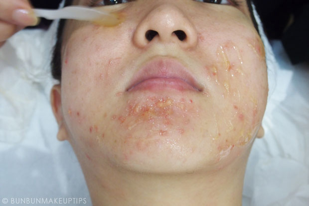 My-Skin-Ravaged-Allergic-Reaction-After-Facial-Experience_day-4-after-extraction-2