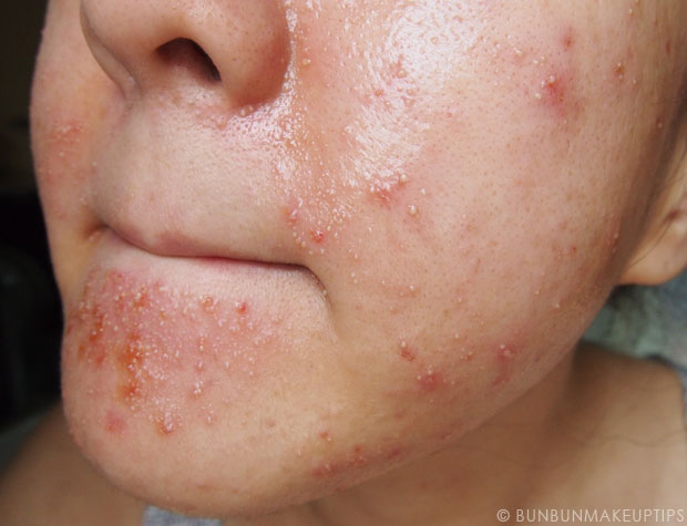 My-Skin-Ravaged-Allergic-Reaction-After-Facial-Experience_day-4-after-extraction-4