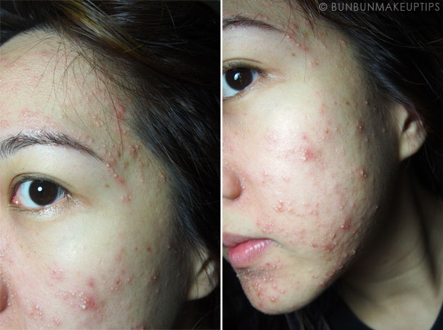 My-Skin-Ravaged-Allergic-Reaction-After-Facial-Experience_day-4-night_2