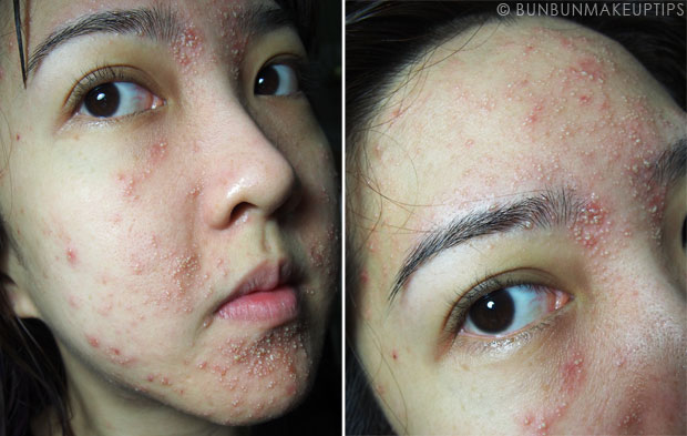 My-Skin-Ravaged-Allergic-Reaction-After-Facial-Experience_day-4-night_3
