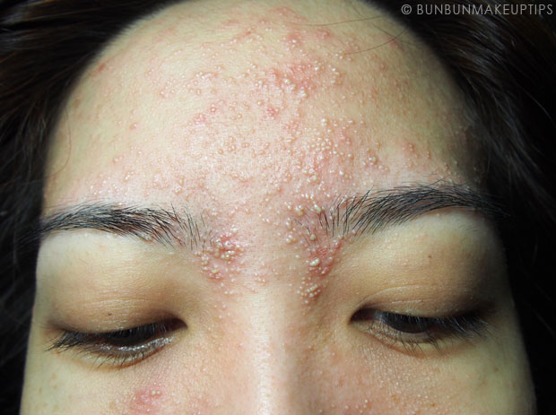 My-Skin-Ravaged-Allergic-Reaction-After-Facial-Experience_day-4-night_6