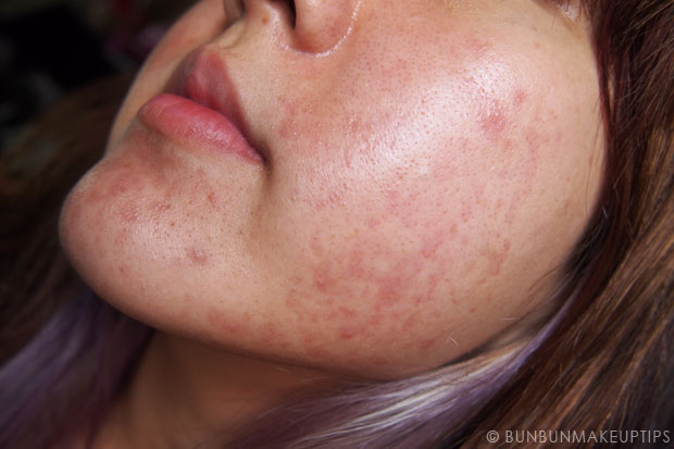 My-Skin-Ravaged-Allergic-Reaction-After-Facial-Experience_day-12
