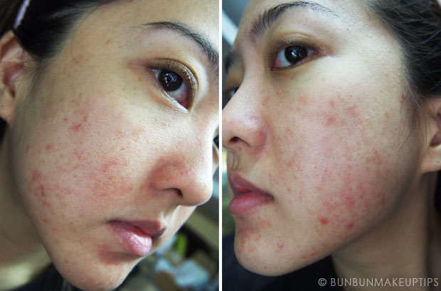 My-Skin-Ravaged-Allergic-Reaction-After-Facial-Experience_day-17