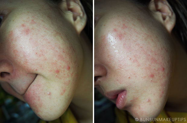 My-Skin-Ravaged-Allergic-Reaction-After-Facial-Experience_day-18