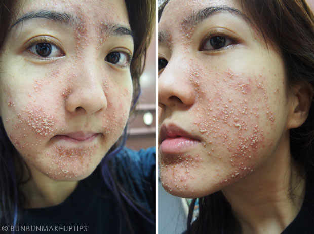 My-Skin-Ravaged-Allergic-Reaction-After-Facial-Experience_day-5-night_3