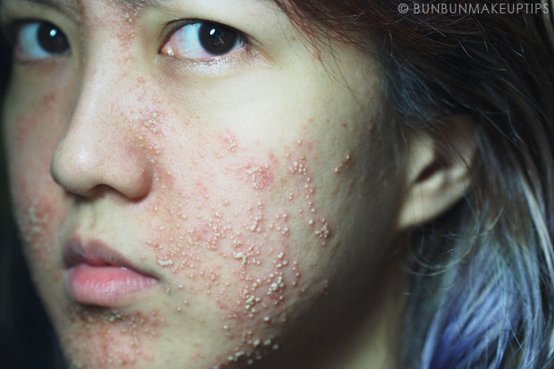 My-Skin-Ravaged-Allergic-Reaction-After-Facial-Experience_day-5-night_5