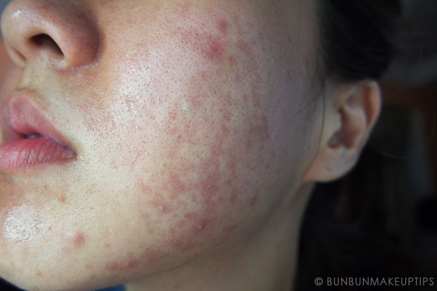 My-Skin-Ravaged-Allergic-Reaction-After-Facial-Experience_day-9