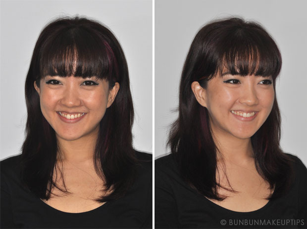 front and side view of woman smiling showing crooked teeth