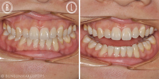 Orchard-Scotts-Dental-Singapore-Review_5.1