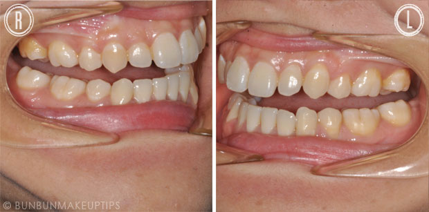 pulled back teeth showing discoloration uneven gumline