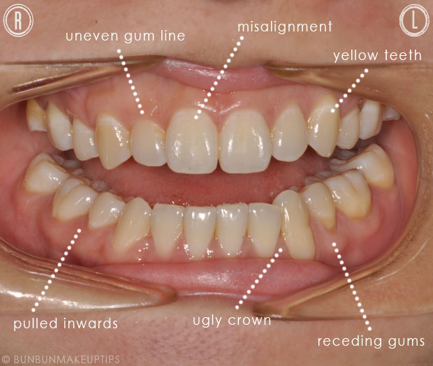 open mouth with teeth imperfections before smile makeover