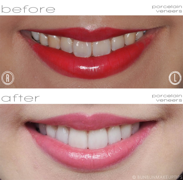 chart showing stages of smile makeover journey