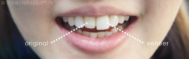 Orchard-Scotts-Dental-Singapore-Review_Final-Porcelain-Veneers_12.1