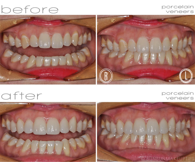 Orchard-Scotts-Dental-Singapore-Review_Final-Porcelain-Veneers_2