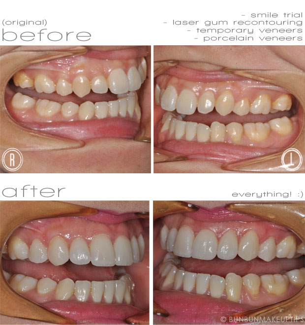 before after photos of smile trial, laser gum recontouring and veneers