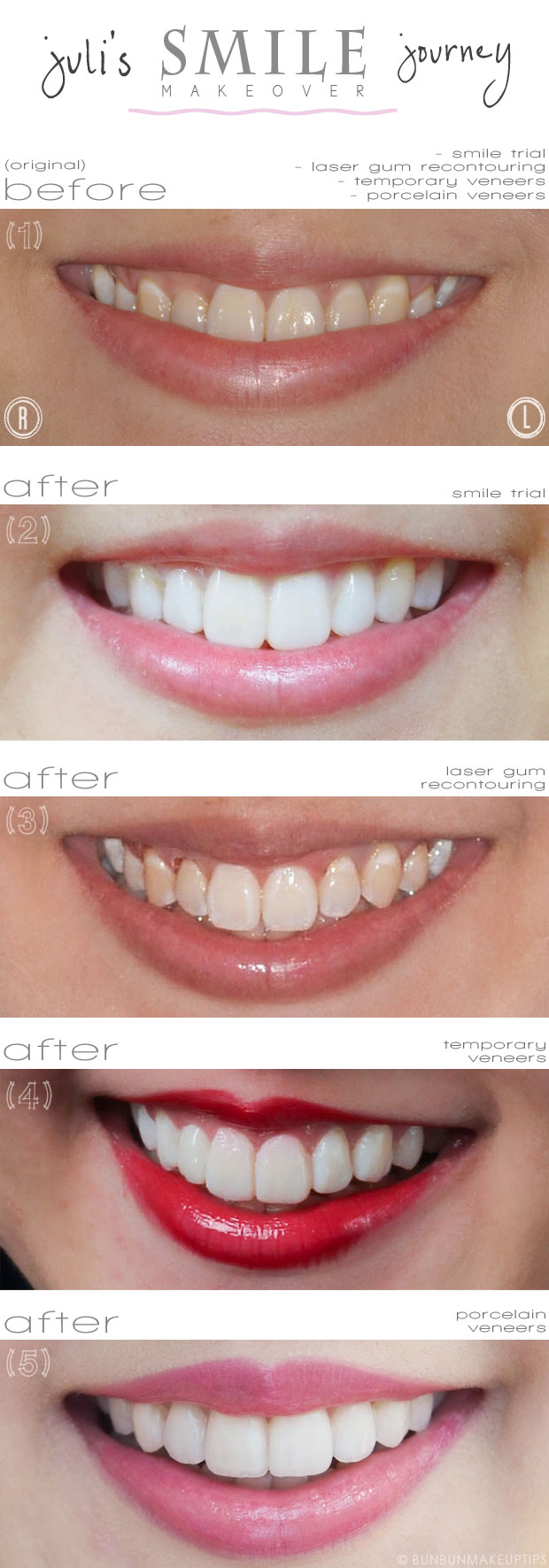final smile makeover review