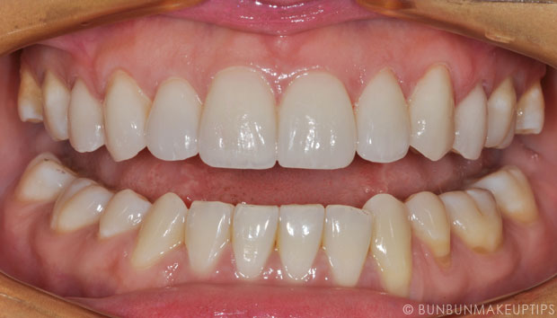 Orchard-Scotts-Dental-Singapore-Review_Final-Porcelain-Veneers_7