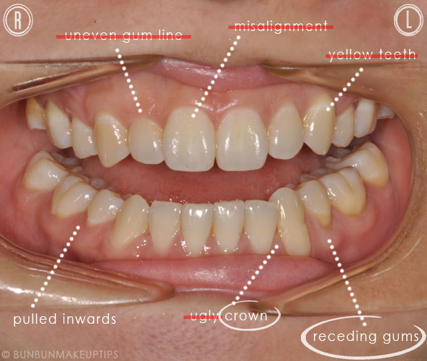 changes made to teeth for smile makeover