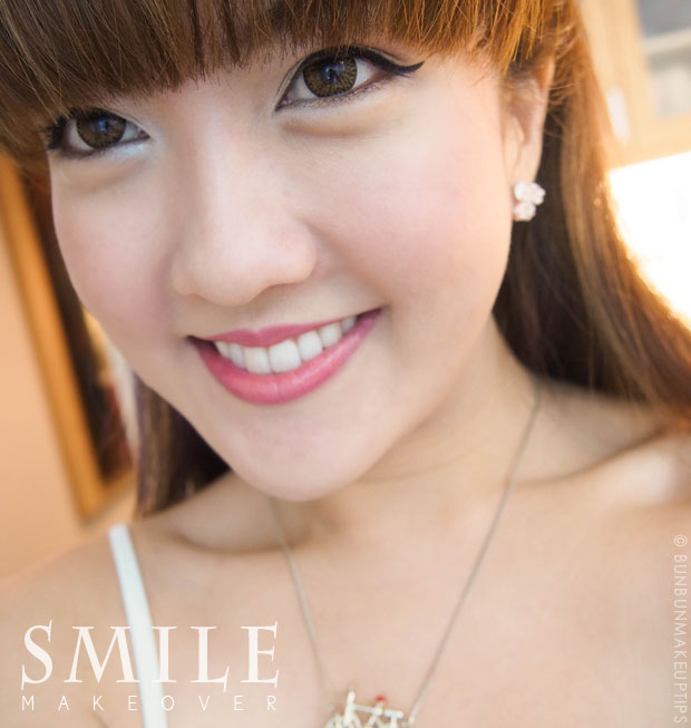smiling with porcelain veneers for smile makeover