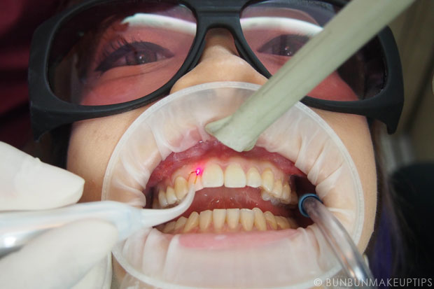 Orchard-Scotts-Dental-Singapore-Review_Laser-Gum-Recontouring_4