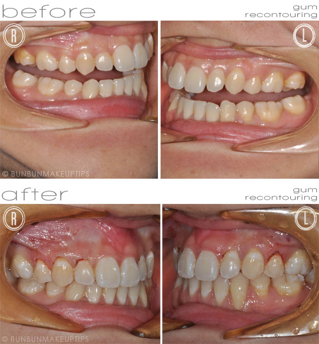 before after comparison for gum recontouring