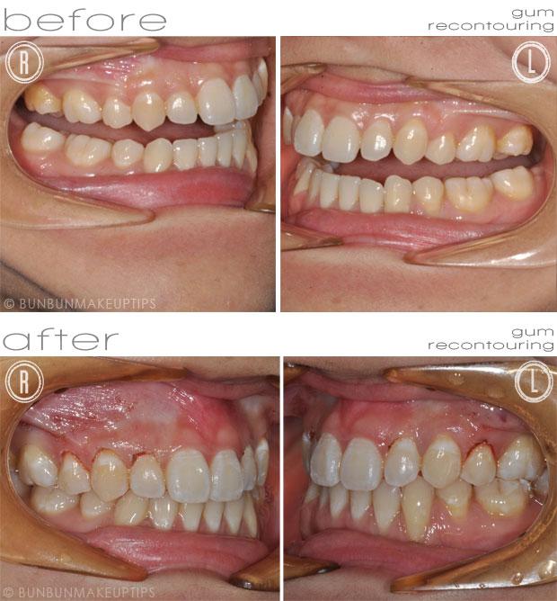 Orchard-Scotts-Dental-Singapore-Review_Laser-Gum-Recontouring_7