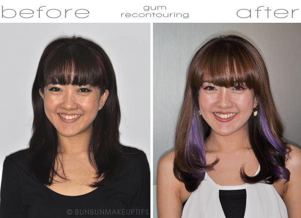 smile makeover before after frontal shot