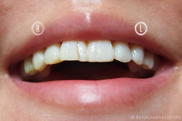 Orchard-Scotts-Dental-Singapore-Review_Temporary-Veneers_13.1