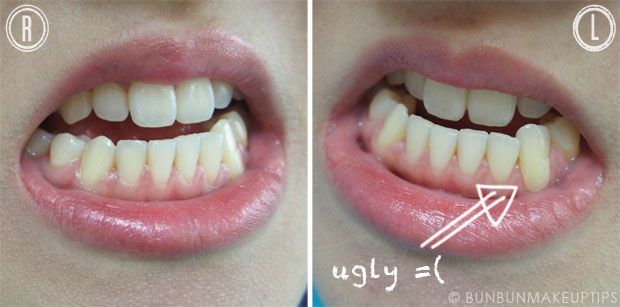 Orchard-Scotts-Dental-Singapore-Review_Test-Veneers_5.1