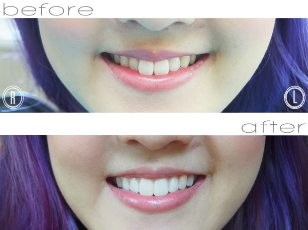 comparison before after pictures for smile trial with veneers