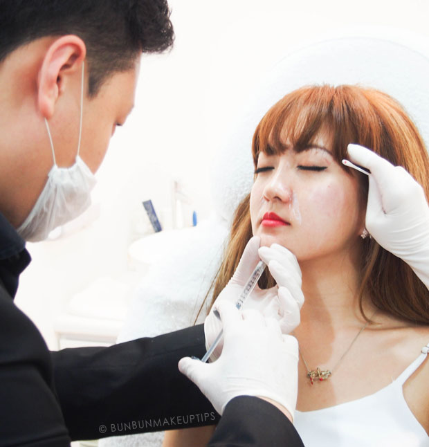Astique-The-Aesthetic-Clinic-Singapore-Review-Nose-Cheek-Chin-Jaw-Slimming-Fillers-Botox_11