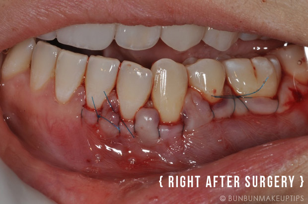 Gum-Grafting-Surgery-Orchard-Scotts-Dental-Singapore_1