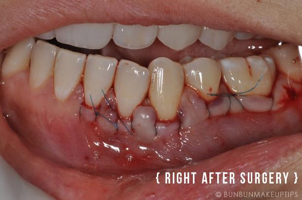 Gum-Grafting-Surgery-Orchard-Scotts-Dental-Singapore_1