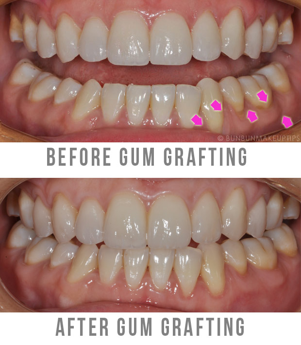 Gum-Grafting-Surgery-Orchard-Scotts-Dental-Singapore_before-after