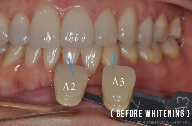 Home-Whitening-Kit-Orchard-Scotts-Dental-Singapore_Before-After-Photos_1