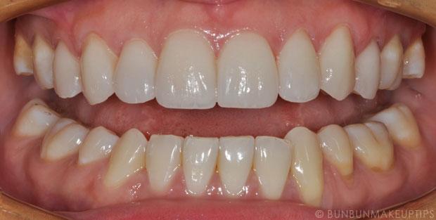 Orchard-Scotts-Dental-Singapore-Review_Final-Porcelain-Veneers_3
