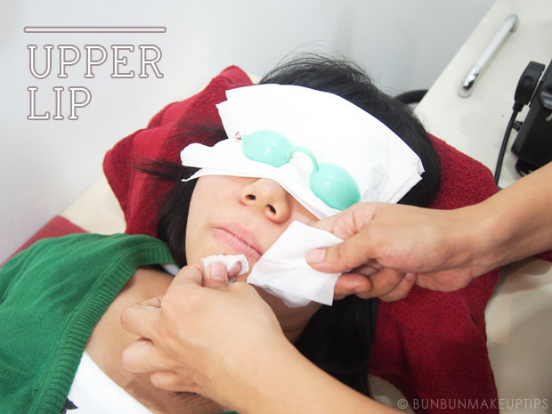 Ginza-Calla-Japanese-IPL-Hair-Removal-Singapore-Review-BFF-Campaign_upper-lip