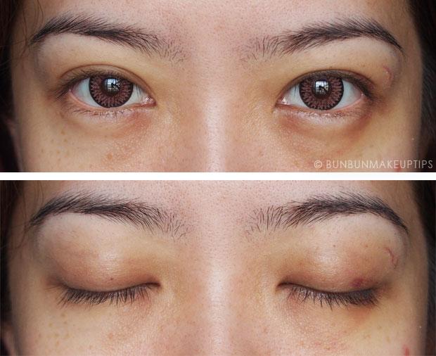 Tips For Swollen, Black & Blue Eyes