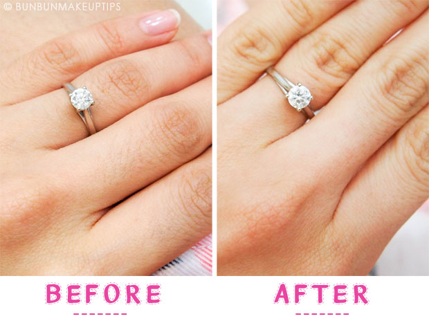 Ginza-Calla-Hair-Removal-Specialist-Review_Fingers-Before-After-comparison