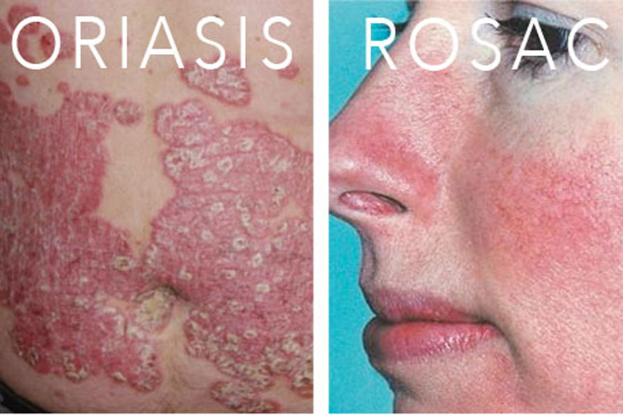 types-of-skin-conditions-psoriasis-melasma-eczema-rosacea-2